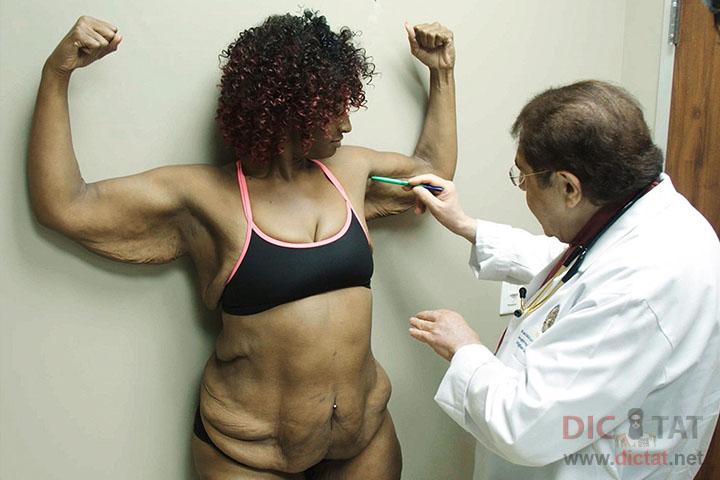 как похудеть в руках после родов