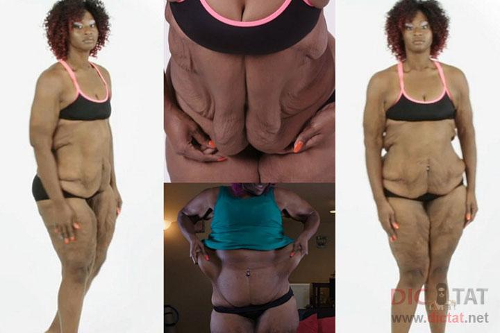 фото женщин 100 кг